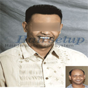 Custom Hair Replacement Systems And Toupees For Men And