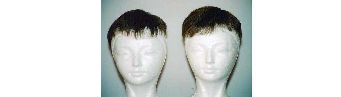 Rm 6000 Us 1862 53 On The Left Hair Club 1800 540 Right Hairsetup