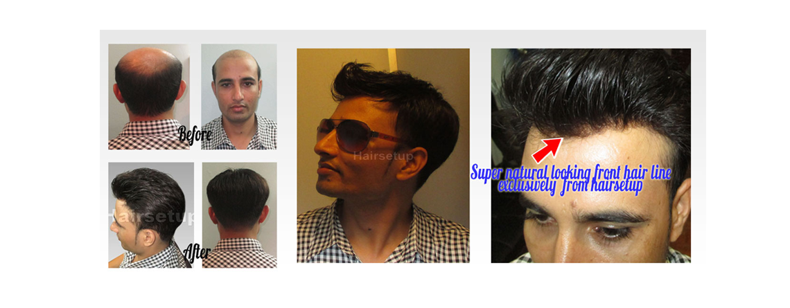 Custom Hair Replacement Systems And Toupees For Men And Women With